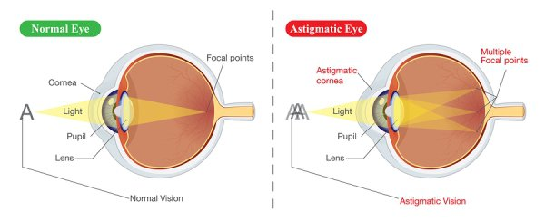 Astigmatism Treatments in Derry NH
